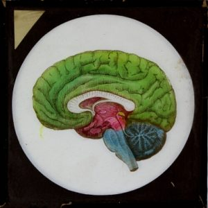 Hand-coloured magic lantern slide depicting the physiology of the human brain